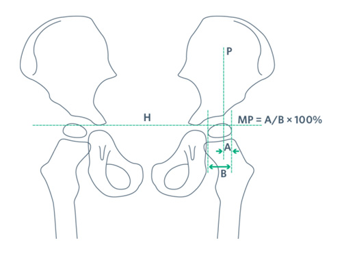 Hip Surveillance | AACPDM - American Academy for Cerebral